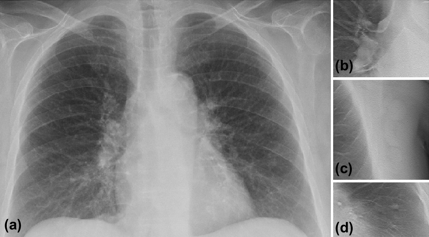 digital tomosynthesis imaging lung For patients with known or suspected lung cancer, imaging achieves  digital  tomosynthesis of the chest: current and emerging applications.
