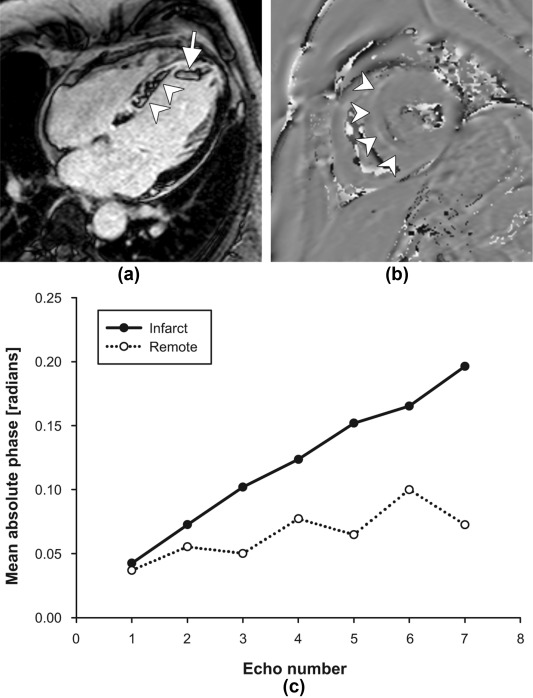 Acute myocardial infarction susceptibility weighted for Apical mural thrombus