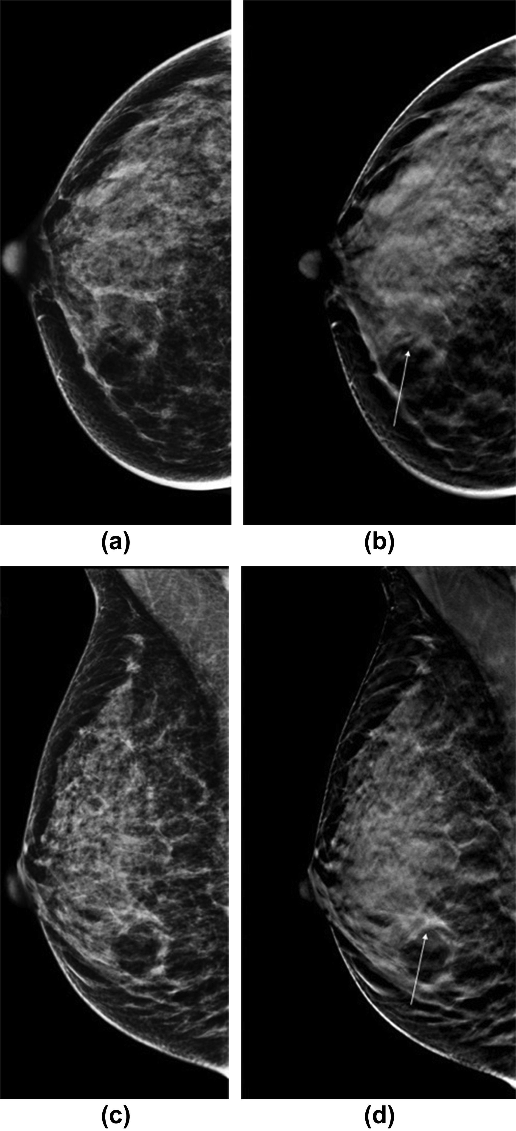 digital tomosynthesis south florida Digital breast tomosynthesis, also known as 3-d mammography, takes many x-rays at different angels to create a three-dimensional image of the breast digital breast tomosynthesis has the potential to significantly increase the cancer detection rate of mammography screening in women with dense breasts.