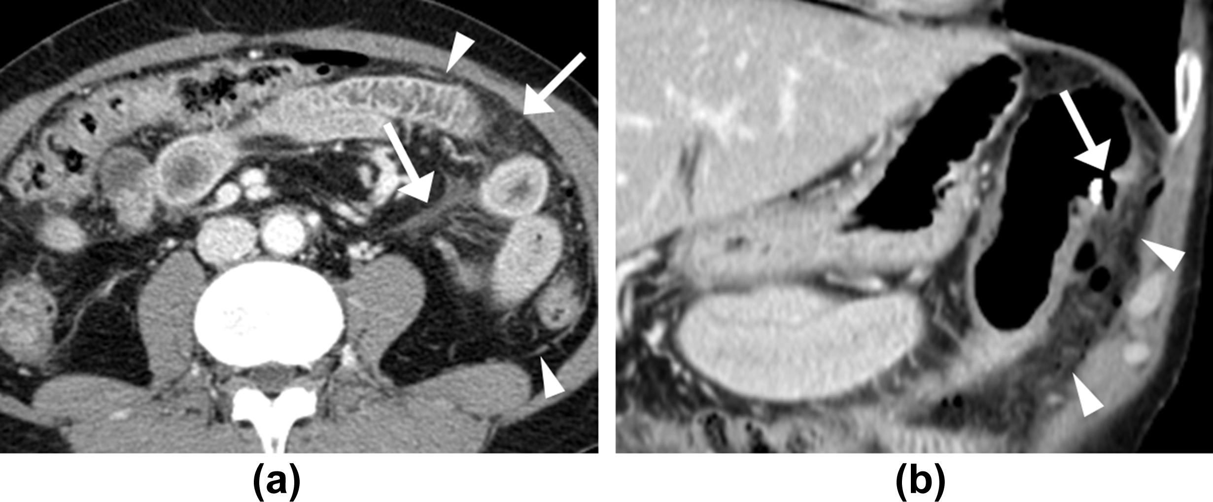 Ct findings of post polypectomy coagulation syndrome and for Colonic mural thickening