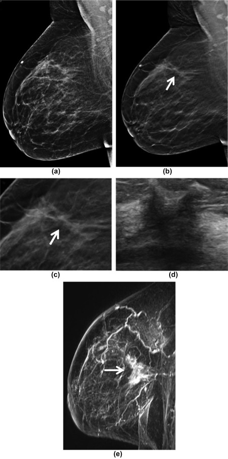 optimization of contrast-enhanced digital breast tomosynthesis Med phys 2010 nov37(11):5896-907 optimization of a dual-energy contrast- enhanced technique for a photon-counting digital breast tomosynthesis system: i.